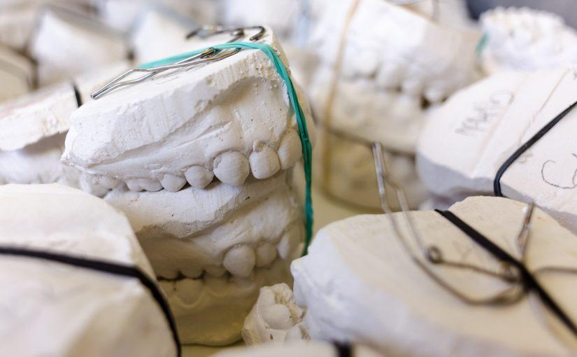 Zły sposób odżywiania się to większe deficyty w zębach a także ich brak